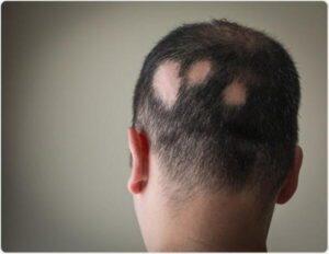 ریزش مو سکه ای