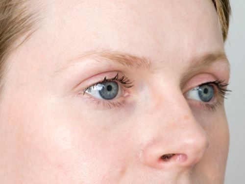 علت ریزش ابرو و درمان آن با 11 روش خانگی